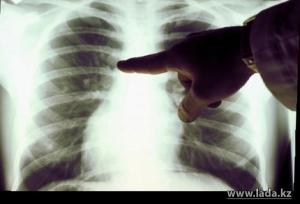Ранняя диагностика рака лёгких увеличивает шансы на выздоровление