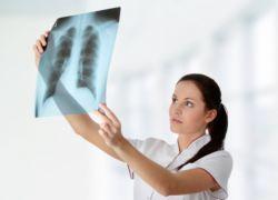 Возбудитель туберкулёза не отступает