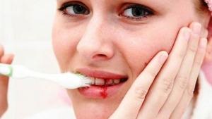 Кровоточивость дёсен: причины и профилактика