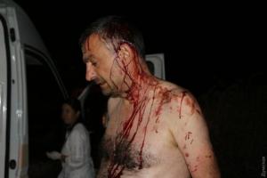 В Овидиополе жестоко избили журналиста