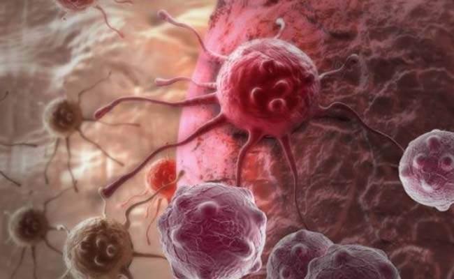 Ученые назвали девять способов защиты от онкологии