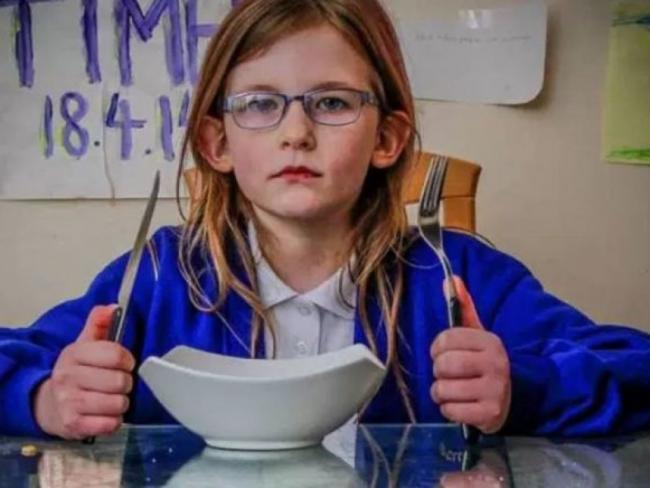 Уникальная девочка из Англии не чувствует голода, боли и усталости