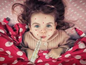 Семь одесских детей заболели корью за неделю