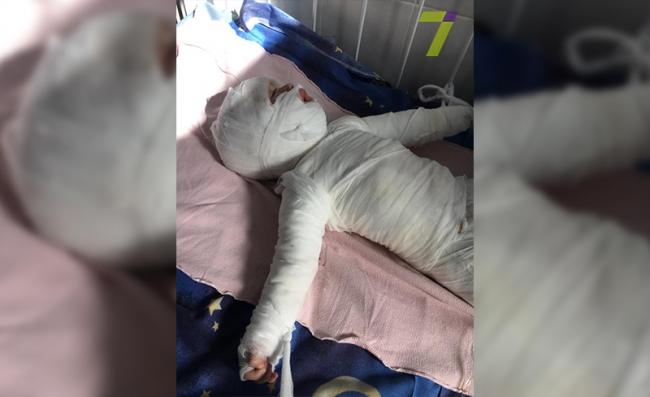 Ребенок получил 80% ожогов тела:его спасают одесские врачи