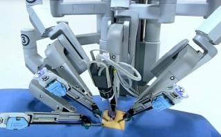 В Виннице робот-хирург выполнил первую в Украине операцию