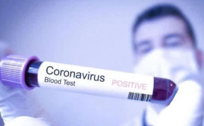 Зафиксировано 40 случаев заражения коронавирусом в Украине