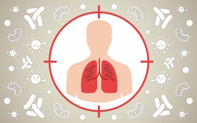В Украине к эпидемии COVID-19 может добавиться туберкулёз