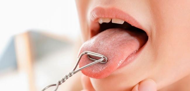 Ученые научились диагностировать сердечную недостаточность по языку