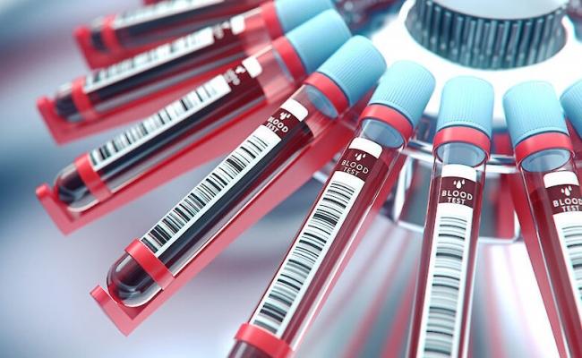 В Украине могут возобновить изготовление вакцин