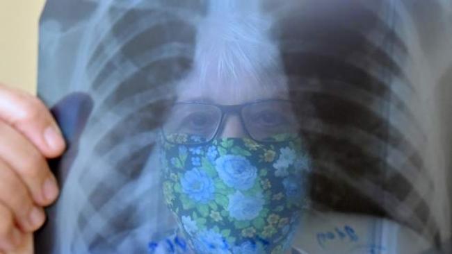 Должны ли платить пациенты за томографию и рентген в случае COVID-19