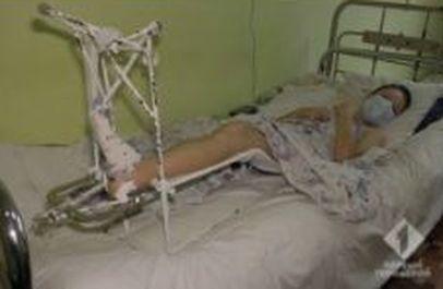 """Шестиклассник сломал ногу на школьном дворе: ребёнка вынесли за территорию и не вызвали """"скорую"""""""