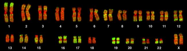 Выявлено 13 ранее неизвестных мутаций, связанных с болезнью Альцгеймера